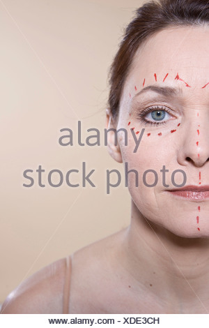 Woman's face with marks for a cosmetic surgery - Stock Photo