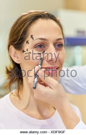 Facelift. Blepharoplasty. Rhytidoplasty. It involves stretching the facial skin in order to remove wrinkles. Before surgery it is necessary to mark - Stock Photo