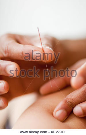 Woman receiving acupunture on the back. - Stock Photo