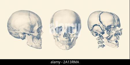 Ein Blick auf die menschlichen Schädel, die den Knochenabbau. - Stockfoto