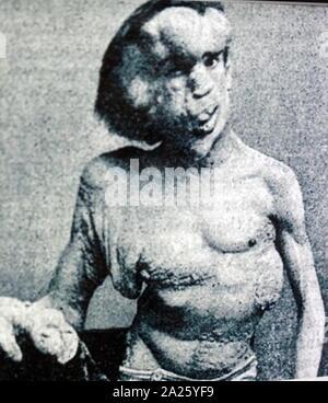 """Foto von Joseph Merrick. Joseph Carey Merrick (1862-1890) ein Mann, der mit schweren Missbildungen gelitten. Merrick arbeitete in einem Freak Show als """"Elephant Man"""". - Stockfoto"""