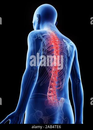 3D-gerenderte Medizinisch genaue Abbildung eines alten Mans schmerzhaft zurück - Stockfoto