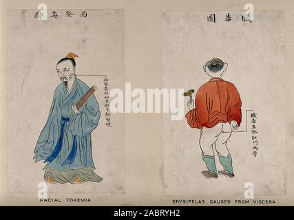 Ein chinesischer Mann Anzeige Symptome des Gesichts toxämie. Farbige Linie Block drucken durch Chiang Yee, nach einem chinesischen Künstler, 1920, 1940.jpg - 2 ABRYH 2 - Stockfoto