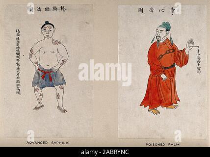 Ein chinesischer Mann Anzeige der Symptome des fortgeschrittenen Syphilis. Farbige Linie Block drucken durch Chiang Yee, nach einem chinesischen Künstler, 1920, 1940.jpg - 2 ABRYNC - Stockfoto