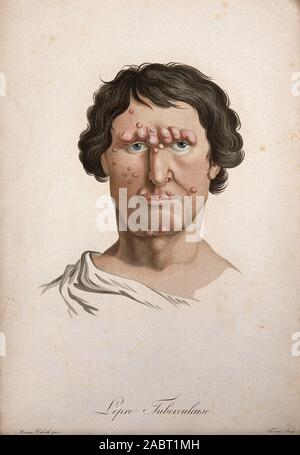 Ein Kopf von einem Mann mit einer Erkrankung der Haut im Gesicht. Farbige Walze Gravur von S. Tresca nach Moreau-Valvile, C. 1806..jpg - 2 ABT 1 MH - Stockfoto