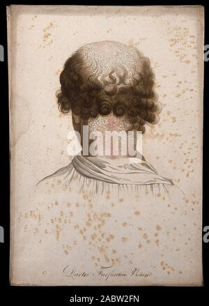 Kopf von einem Mann mit Haut Krankheit; zurück. Farbige Walze Gravur von S. Tresca nach Moreau-Valvile, C. 1806..jpg - 2 ABW 2 FN - Stockfoto