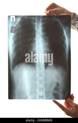 Arzt mit einem RX, isoliert auf einem weißen Hintergrund. - Stockfoto