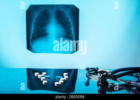 Tuberkulose Behandlungskonzept. Röntgenaufnahme der Lunge, mit Pathologie, phonendoscope mit Pillen auf den Tisch. Lungenerkrankung. Lungenentzündung. Medizinische Flatley, p - Stockfoto