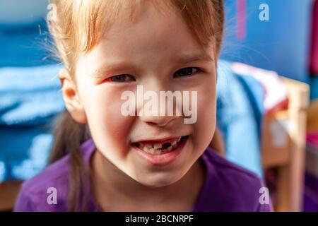 Lächelndes kleines Mädchen, das einen Zahn mit geöffnetem Mund vermisst hat, das Zähnchenporträt zeigt, ein glückliches Kind ohne den vorderen Zahn, Milchzähnchen-Konzept