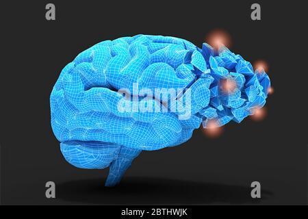 Gehirnentzündung oder andere Prozesse mit Gewebeschäden oder Denken verbunden konzeptionelle 3d-Illustration hilfreich für die Visualisierung von Gehirnerkrankungen. - Stockfoto