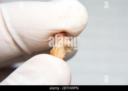 Nahaufnahme eines Hundezahns mit bakterieller Plaque - Stockfoto