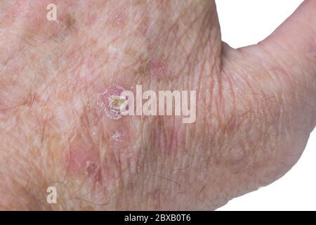 Rote Pickel auf der menschlichen Haut Makro Nahaufnahme