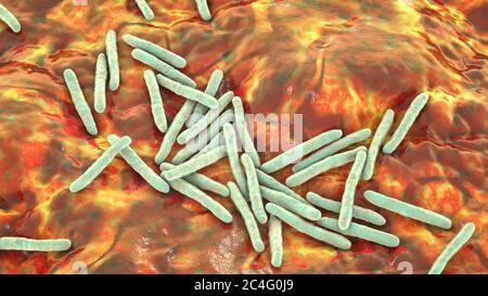 Tuberkulose Bakterien. Computer Abbildung von Mycobacterium Tuberkulose Bakterien, Gram-positive stabförmige Bakterien, die die Krankheit Tuberkulose verursachen. - Stockfoto
