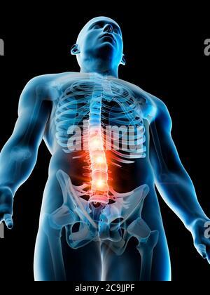 Schmerzen im unteren Rücken, konzeptionelle Computer Abbildung. - Stockfoto