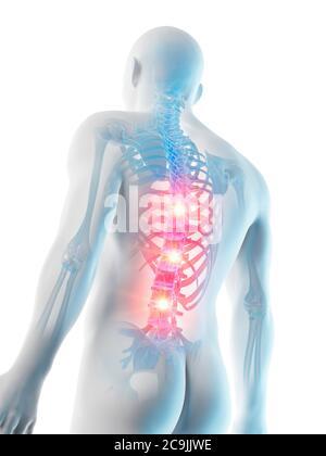 Rückenschmerzen, konzeptionelle Computer Abbildung. - Stockfoto