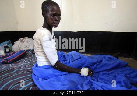 Eine Vertriebene sudanesische Frau sitzt in ihrem Krankenhausbett in Akobo Camp im Süd-Sudan Jonglei Zustand 8. Mai 2009, während des Besuchs des UN-Untergeneralsekretär für humanitäre Angelegenheiten John Holmes. Stammes-Gewalt im Südsudan, die Hunderte von Menschen, in den letzten Wochen getötet hat ist besorgniserregend und die Region nicht leisten können, einen weiteren Krieg, sagte Holmes am Freitag. Angriffe, die aus Streitigkeiten über Rinder haben in den letzten Monaten im Südsudan zwischen zwei rivalisierenden ethnischen Gruppen in einem Gebiet eskaliert, wo Vieh sind vom südlichen Hirten geschätzt und stehen für Reichtum, Status und Stabilität in f