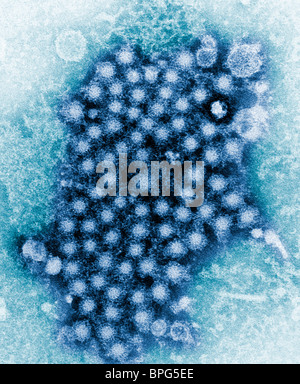 Eine Übertragung Elektronen Schliffbild (TEM) zeigen zahlreiche Hepatitis Virionen, von einem unbekannten Stamm. - Stockfoto