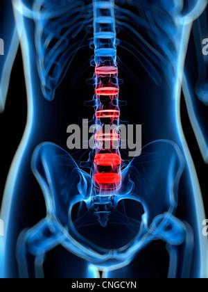 Schmerzen im Rücken konzeptuellen Kunstwerk - Stockfoto