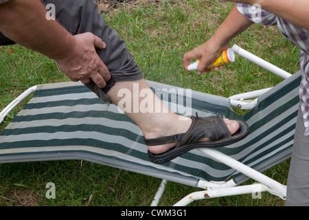 Anwenden von Aerosol-Spray Mückenschutz, nackten Knöchel. Zawady Zentralpolen - Stockfoto
