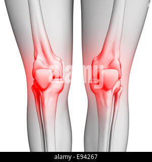 Illustration des menschlichen Knie Schmerzen Kunstwerk - Stockfoto