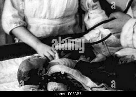 Foto von einem Säugling brennen Vctim ärztlicher Behandlung nach der Atombombenabwürfe auf Hiroshima. Datiert 1945 - Stockfoto