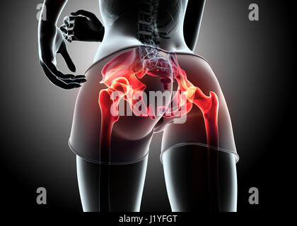 3D Illustration - Frau Runing posieren mit Röntgenbild Hüftgelenk und Skelett. - Stockfoto