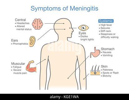 Diagramm zu zeigen Patienten Symptome mit Meningitis Krankheit. - Stockfoto