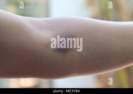 Schwarz gequetschten Winkelstück von der Blutprobe, Nadel - Stockfoto