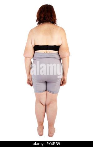 Frau mittleren Alters mit schlaffe Haut nach extremen Gewichtsverlust - Stockfoto