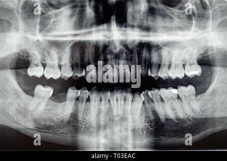Panoramablick auf die zahnmedizinische Röntgensysteme, eins, Zahn Loch - Stockfoto