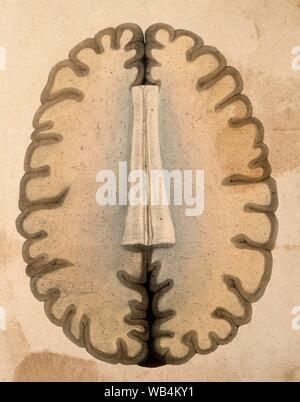 Das menschliche Gehirn Querschnitt durch die Hemisphären auf der Ebene des Corpus callosum. Farbige Lithographie von Wi.jpg-WB 4 KY 1. - Stockfoto