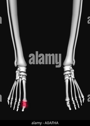 Anschauliches Diagramm Skelett zeigt Phalangen in ein rotes Licht ...