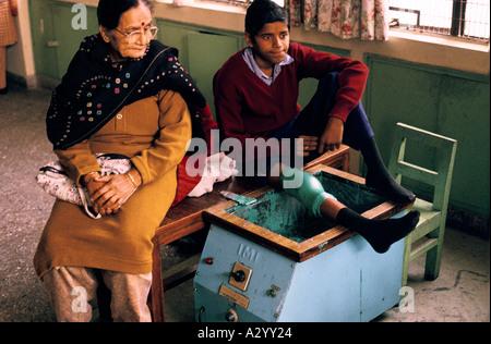 Junge mit geschmolzenem Wachsbehandlung nach der Operation, sein Bein zu reparieren, nach Vertragsabschluss Polio, - Stockfoto