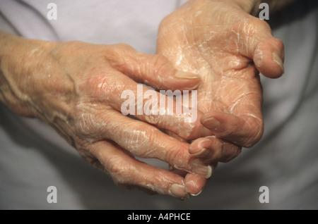 ältere arthritischen Händen setzen auf Seite Creme - Stockfoto