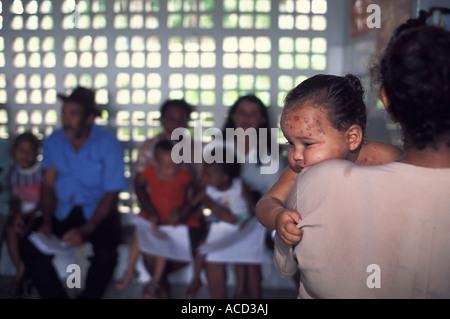 Ein Jahr altes Baby mit wund Gesicht (Hautausschlag) wartet auf eine Beratung in einem öffentlichen Krankenhaus - Stockfoto