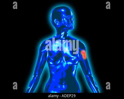 menschlichen Körper transparent Stil Computer Röntgenaufnahme einer ...