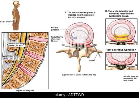 Zurück Chirurgie L4 5 und L5-S1 Lendenwirbel Laminotomie und ...