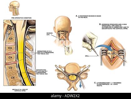 Verletzungen der Wirbelsäule - C4-5, C5-6 und C6-7 Stenose und Disc ...