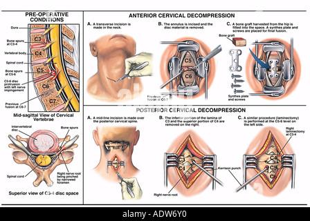 Wirbelsäulenchirurgie - Bandscheibe Vorsprünge auf C4-5 und C5-6 mit ...