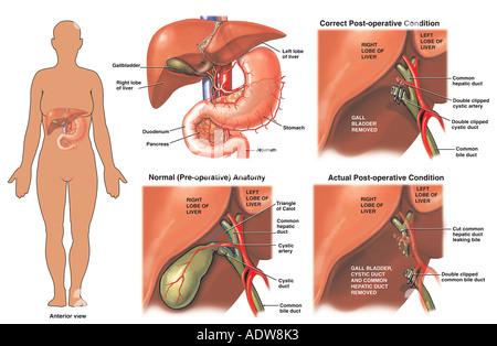 Cholezystektomie Gallenblase Chirurgie mit Verletzungen Gallengang ...