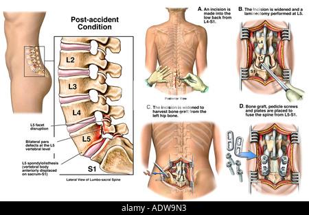 Lendenwirbelsäule Verletzungen - Bandscheibenvorfall L5-S1 mit ...