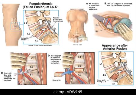 Niedrige rückseitige Verletzung L5 Lendenwirbelsäule Fraktur und ...