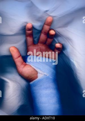 Hand und Handgelenk Knochen - Studio mit 3D Abbildung isoliert auf ...
