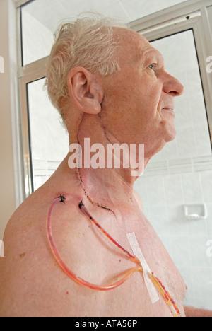 Krebs von der Parotis Stockfoto, Bild: 4055307 - Alamy