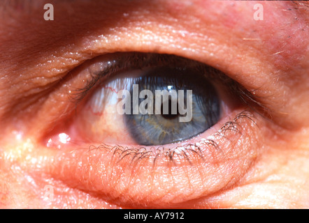 Auge - Stockfoto