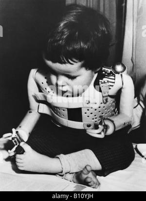 Eine drei Jahre alte Thalidomid Kleinkind mit macht künstliche Arme getrieben. - Stockfoto