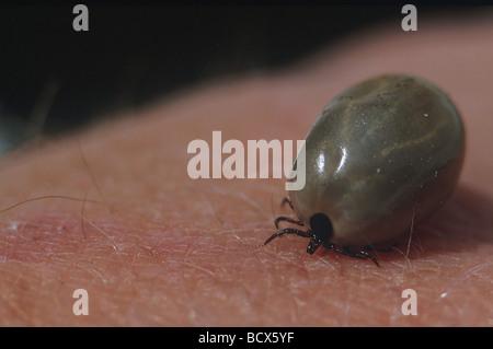 Castor Bean Zecke (Ixodes ricinus), Weibliche völlig überladen mit Blut auf der menschlichen Haut - Stockfoto