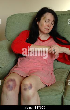 weibliche Opfer von häuslicher Gewalt, England, UK - Stockfoto