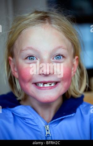 Eine blasse Wangen rosig sechs Jahres altes Mädchen Grimassen. - Stockfoto