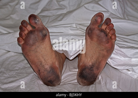 Schlecht gepflegte schmutzigen Füße in weißen Laken, persönliche hygiene - Stockfoto